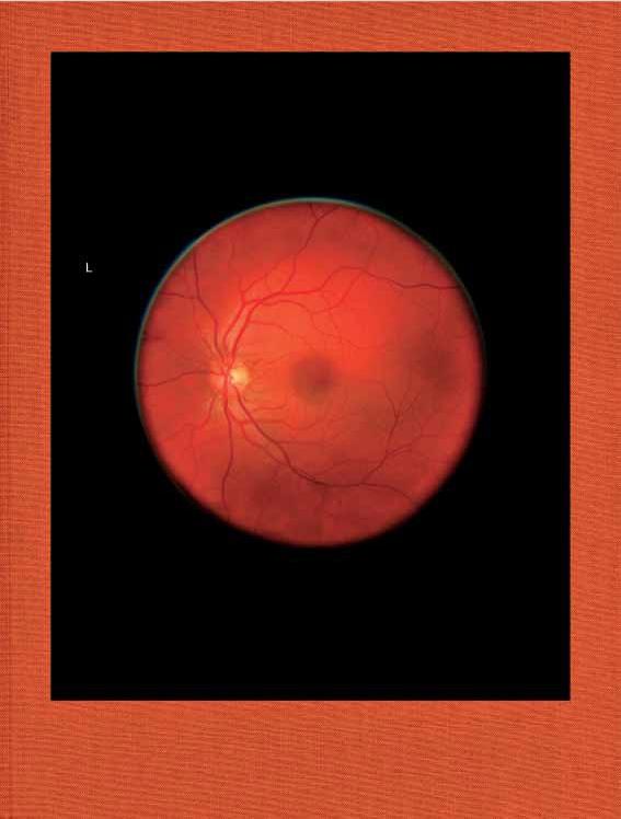 Mikhael Subotzky - Retinal Shift